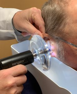 Earwax-removal 2
